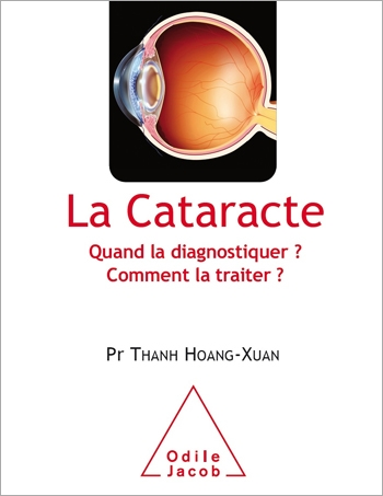 Cataracts - From diagnosis to treatment